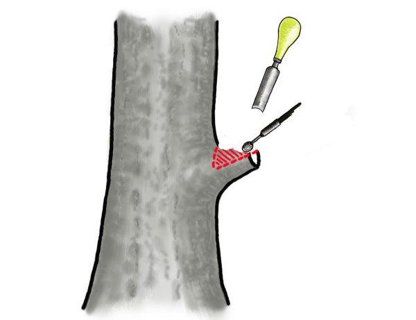 Bí quyết giúp sẹo lớn mau lành - duc loi go cua phan nhanh chua lai